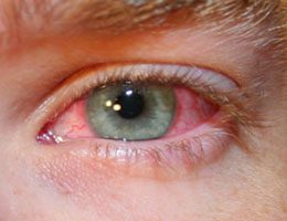 akutní syndrom červeného oka