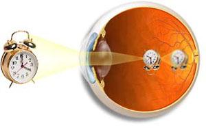 oko - krátkozrakost