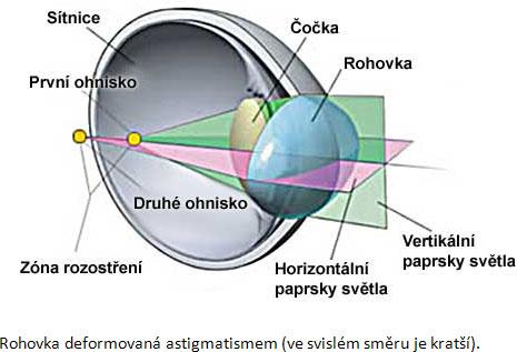 oční vady - astigmatismus