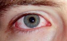 infekční onemocnění oka